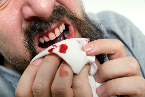 bleeding_gums.jpg