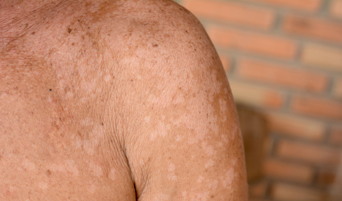 Forum on this topic: What Is Tinea Versicolor, what-is-tinea-versicolor/