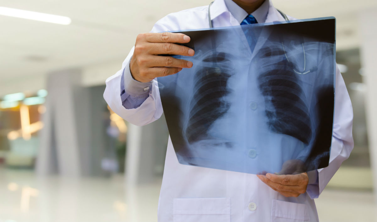 6 Sneaky Signs Of Lung Cancer That Have Nothing To Do With A Cough