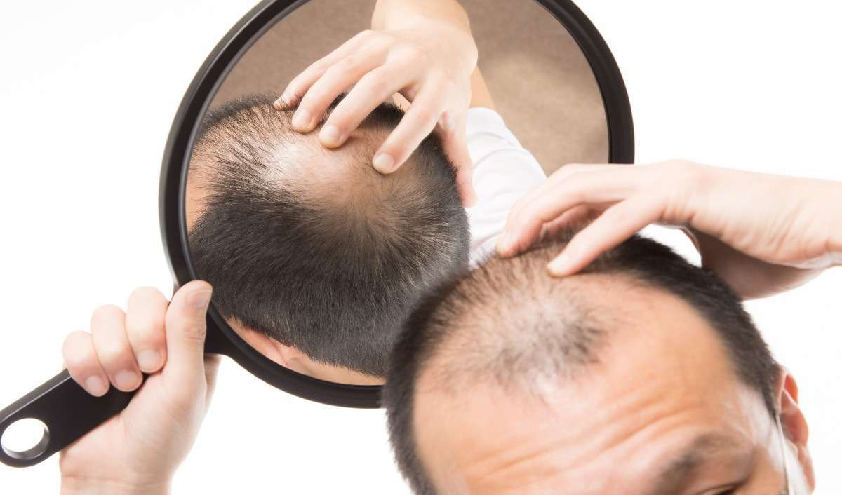 Grooming Tips for men with thinning hair