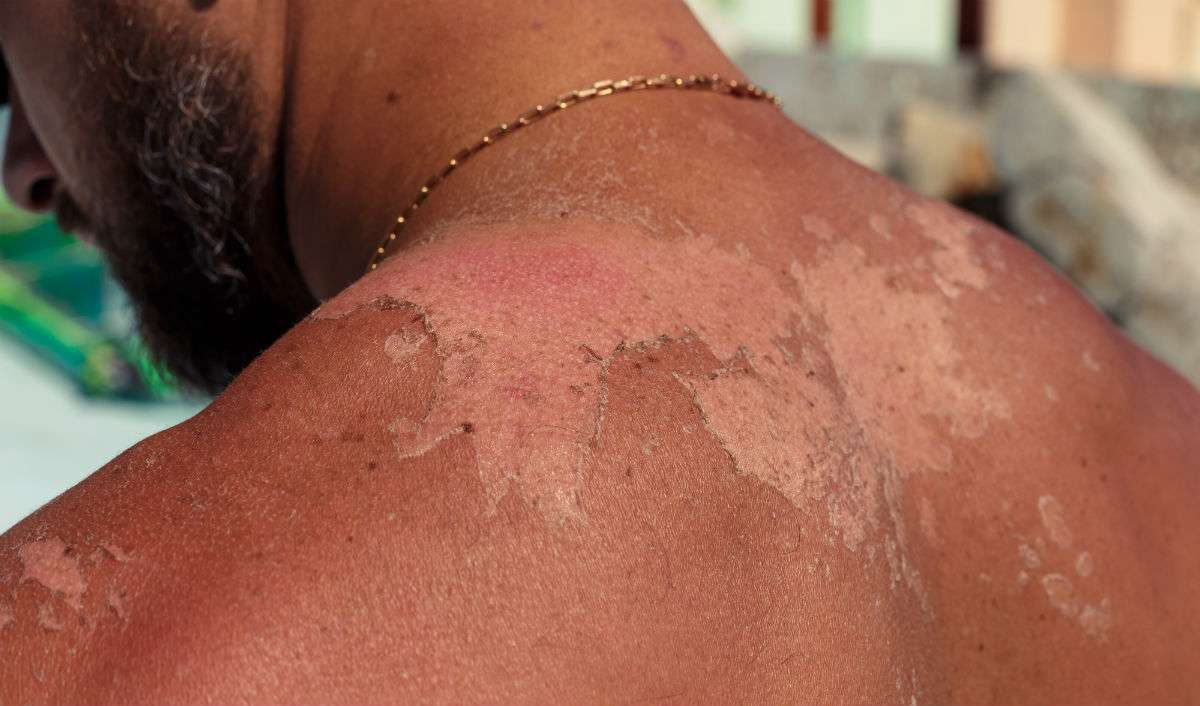 sun damage skin care tips for men
