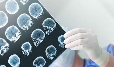alzheimers brain herpes virus