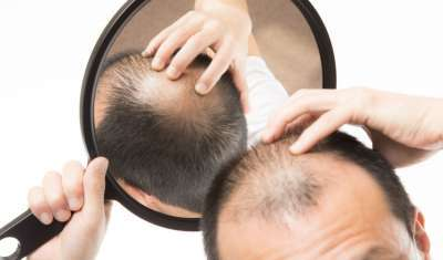 This New Theory May Actually Explain Why You're Going Bald
