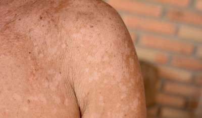 What Is Tinea Versicolor?