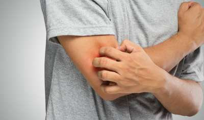 summer itch causes